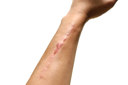 Scars from broken arm surgery on white background
