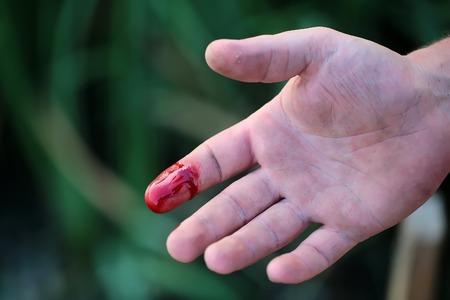 Teilansicht des rechten Zeigefinger auf menschliche Hand gedreht mit Palmen ist verletzt und blutend mit hellrotes Blut im Freien sonnigen Tag auf blured grünen Hintergrund geschnitten, horizontale Abbildung Standard-Bild - 45558064