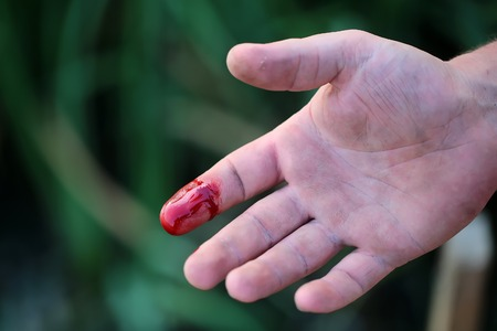 Closeup view of index finger on right human hand turned with palm is cut hurt and bleeding with bright red blood outdoor sunny day on blured green background, horizontal picture