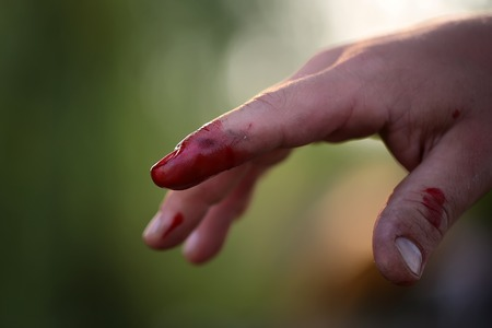 one hand: Closeup view of index finger on right human hand is cut hurt and bleeding with bright red blood outdoor sunny day on blured natural , horizontal picture Stock Photo