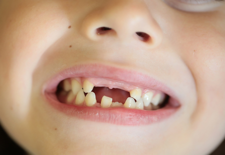 toothless: Childish cute mouth with beautiful lips and missing milk teeth dental health care and hygiene six years old toothless kid child closeup, horizontal picture