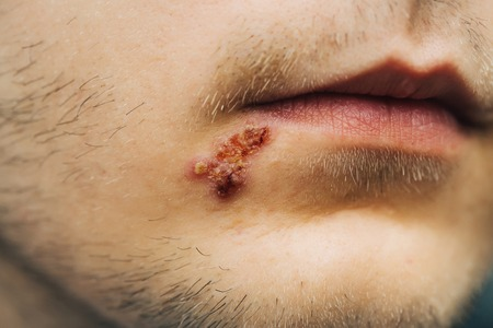 ulceration: male unshaven mouth with short hair and dried herpes wound or ulcer covered with crisp near lips, closeup