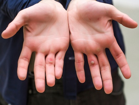 callus: Male hands palms with painful unhealthy blister and callus on damaged skin of fingers Stock Photo