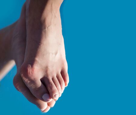 orthopedist: bone on foot toe with pedicure reflecting in mirror on blue background, copy space, medicine and health, relax and tiredness, age and evolution
