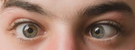 eyes with squinted look and eyebrows on male face. Grimace. Strabismus Stock Photo