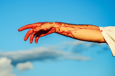 zombie male hand of man war soldier with bloody wounds and red blood on skin on blue sky background