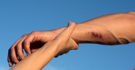 Twee armen op blauwe hemel. Vrouwelijke hand die mannelijke pols met bloedige wonden en aders op huid houdt. Ondersteuning, redding en hulpconcept. Stockfoto