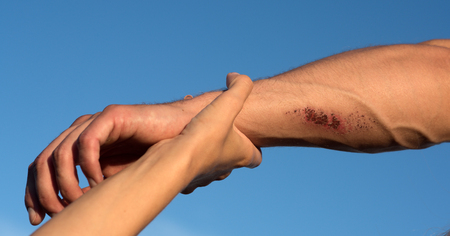 Two arms on blue sky. Hand female holding male wrist with bloody wounds and veins on skin. Support, rescue and help concept.