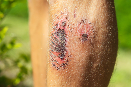 Feet Of Male With Bloody Wounds And Hair On Skin Leg Abrasion Injury Sunny