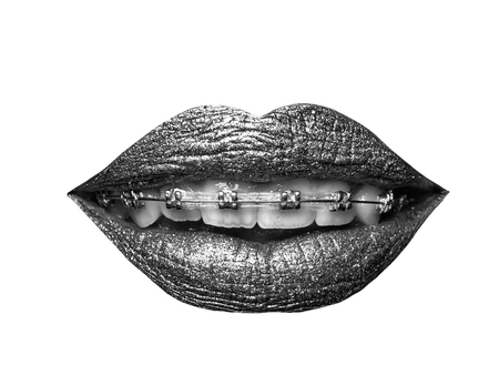 sexy smiling female golden or gold lips isolated on white background as makeup or body art painted mouth metallized color with braces or brackets on teeth