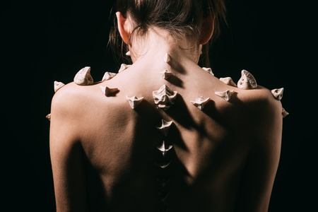 Female back with spikes isolated on black background. Girl with thorns on bare skin along spine, turn back. Bone problems, pain, medical treatment and healthcare concept.