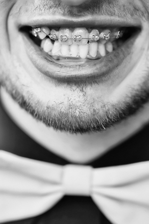 brackets. Smiling male mouth with brace Stock Photo