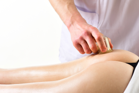 cupping jar. cupping vacuum jar therapy against cellulite. cupping jar therapy is a form of alternative medicine. cellulite cupping jar massage in spa. perfect buttocks. Stock Photo