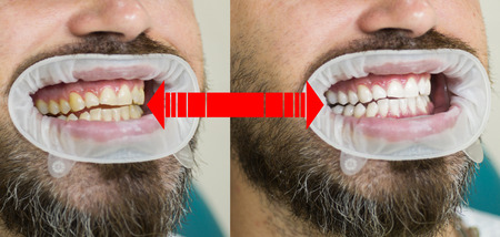 Smile before and after bleaching. Dental care and whitening teeth. Result of teeth whitening. Teeth Whitening Before After. Yollow or white teeth. Banco de Imagens