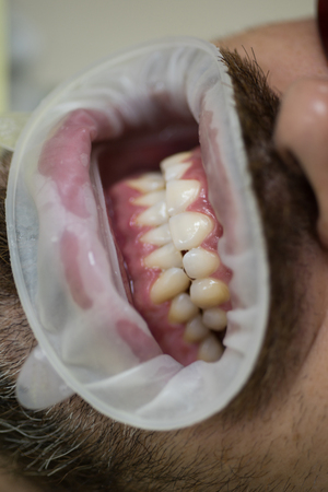 Close up of men patient with open mouth in medical chair. Doctor with assistant making teeth check up in dental clinic. Man at dentists office.