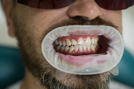 Portrait of man with snow white teeth. Dentist examining patients teeth in clinic. Stock fotó