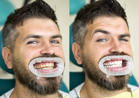 White teeth - before and after concept. Close-up detail of man teeth before and after whitening. Result of teeth whitening. Perfect smile after bleaching. Stock Photo