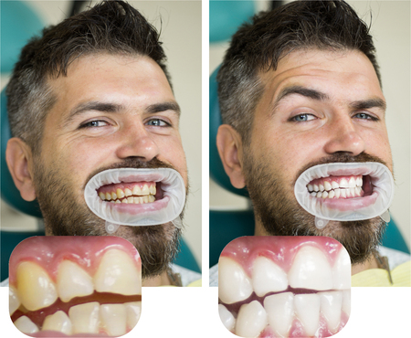 Whitening after and before. Man in dental chair. Dentist preparing for dental whitening. Health medicine people dentistry doctor curing. Result of teeth whitening. 写真素材