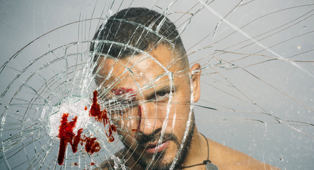 An ill wound is cured. Hispanic man bleeding from bullet wound. Latino man with blood wound on face and broken glass. Handsome wounded guy with skin deep injury wound Imagens