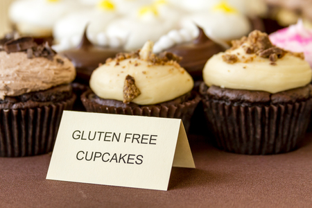 free: Display of assorted gluten free cupcakes sitting on display table