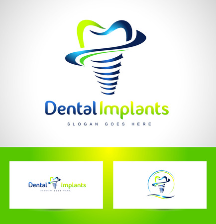 dental implants: Dental Implant Design. Dentist Logo. Dental Implants Clinic Creative Company Vector Logo.
