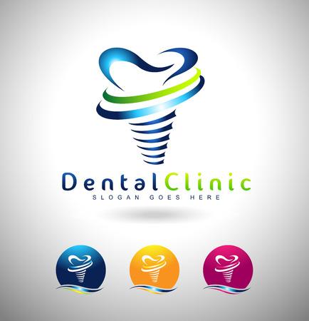 치과 임플란트 디자인. 치과 의사 로고. 치과 임플란트 클리닉 창조적 인 회사 벡터 로고. 일러스트