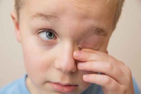 Young child rubbing his eyes with his fingers
