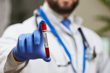 An infectious disease physician a beard demonstrating a coronavirus (COVID-19) blood tube test in his hand. A close-up photo of a 2019-nCoV blood sample