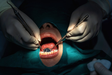 Closeup Dentist and assistant operating for checking and teeth cleaning at dental clinic, Tooth care concept.