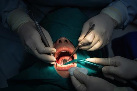 Primer dentista y asistente de funcionamiento para el control y la limpieza de los dientes en la clínica dental, concepto de cuidado de los dientes. Foto de archivo