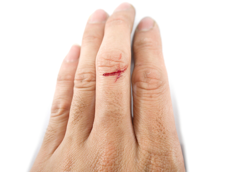 Accident wounded male finger with blood and knife on white background.