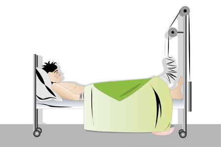 Ilustración del hombre con la pierna de fractura de dormir