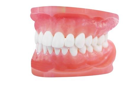 dentadura postiza: La imagen de dentaduras bajo el fondo blanco