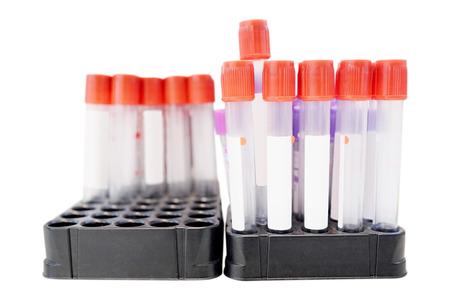 test probe: Insert blood tube Stock Photo