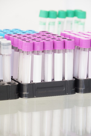 sample tray: The image of an insert blood tubes Stock Photo