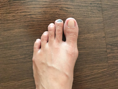 Bruise on toenail or injured black toenail on wooden floor, close up view, healthcare and medical concept