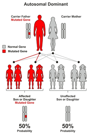 Autosomal Dominant Hereditary Trait infographic diagram including parents father and mother probability of son and daughter to be affected or unaffected by mutated gene for genetic science education 일러스트