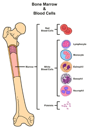 leukemia: Bone Marrow infographic diagram including femur reproduction of red white blood cells platelets lymphocyte monocyte esinophill basophill neurophill for medical science education