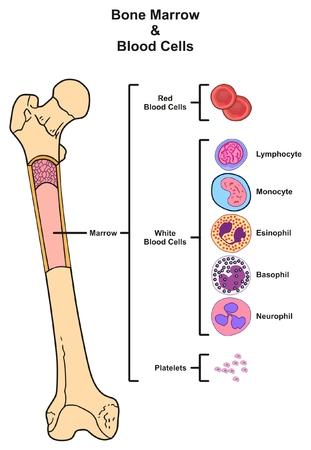 Diagramme infographique de la moelle osseuse comprenant la reproduction au fémur de globules blancs, de plaquettes, de lymphocytes, de monocytes, d'esinophill, de basophile, de neurophile pour l'enseignement des sciences médicales