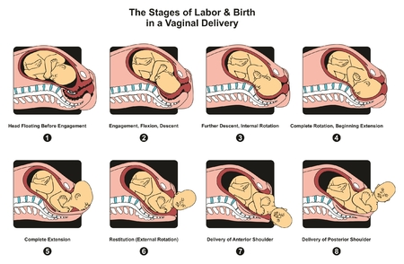 Stages of Labor and Birth in a vaginal delivery infographic diagram including engagement descent internal complete rotation extension poster for medical science education and healthcare Vectores