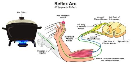 Diagramme infographique de l'arc réflexe avec l'exemple de la main humaine réflexe polysynaptique touchant les récepteurs de la douleur à l'objet chaud et la direction de l'impulsion pour l'enseignement des sciences médicales