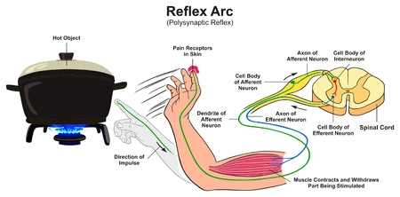 Reflex Arc infographic diagram with example of polysynaptic reflex human hand touching hot object pain receptors and direction of impulse for medical science education 일러스트