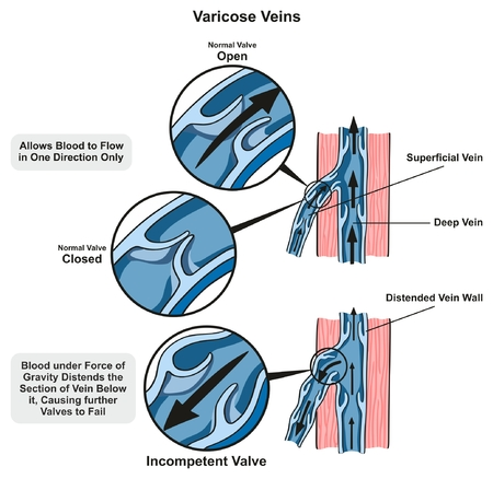 Varicose Veins infographic diagram showing the normal valve open and closed and compare it to incompetent valve which fails for medical science education and health care
