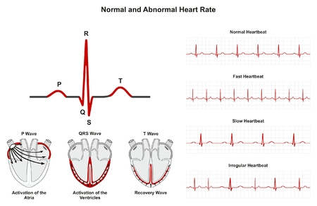 Normal and Abnormal Heart Rate infographic diagram including activation of atria ventricle and recovery wave also chart of normal fast slow irregular heartbeats for medical science education and health care 向量圖像