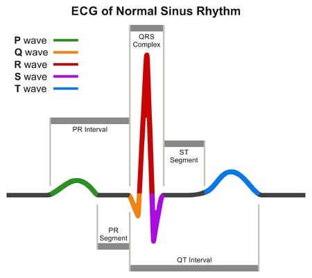 Diagrama infográfico del ECG del ritmo sinusal normal que muestra una onda de latido cardíaco normal que incluye segmentos de intervalos y complejos para la educación en ciencias médicas y la atención médica