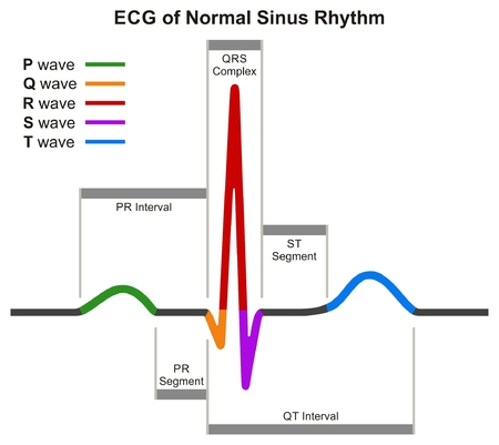 EKG prawidłowego wykresu infograficznego Sinus Rhythm przedstawiający prawidłową falę uderzenia serca, obejmującą odcinki interwale i kompleks dla edukacji medycznej i opieki zdrowotnej