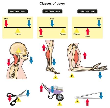 Clases de palanca diagrama infográfico que muestra las partes y los tipos, incluyendo la carga de fulcro y el esfuerzo con ejemplos de articulaciones del cuerpo humano huesos y músculos vida cotidiana para la educación de ciencias de la física Ilustración de vector