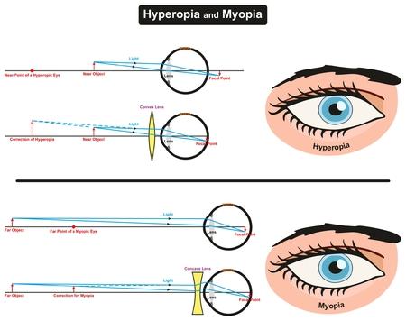 Hyperopia and Myopia infographic diagram showing comparison between them including far and near object focal points eye retina and correction convex and concave lens for medical science education Ilustração