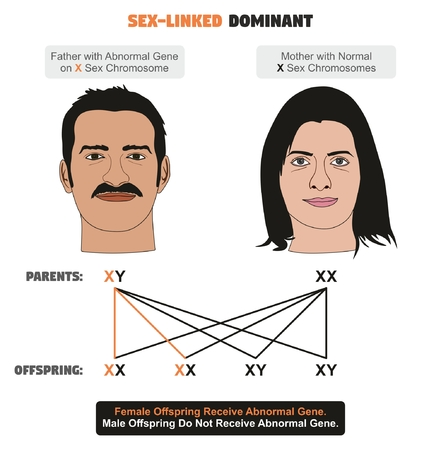 Sex-linked Dominant Hereditary Trait infographic diagram showing father with abnormal gene on X sex chromosome while mother has normal ones for genetics and medical science education