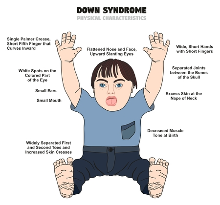 Down Syndrome Physical Characteristics infographic diagram showing affected kid born with this disability for medical science health care and people awareness